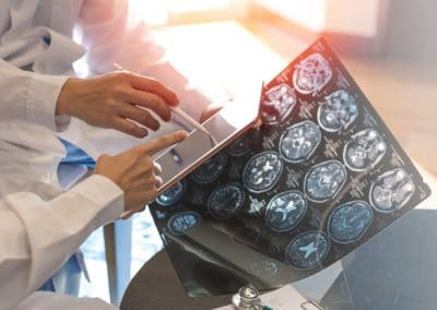 CRUCIAL the research project for vascular dementia and heart failure